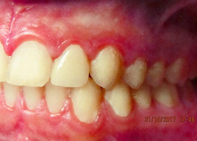 Studio Dentistico Marina Fiocca - Caso faccette