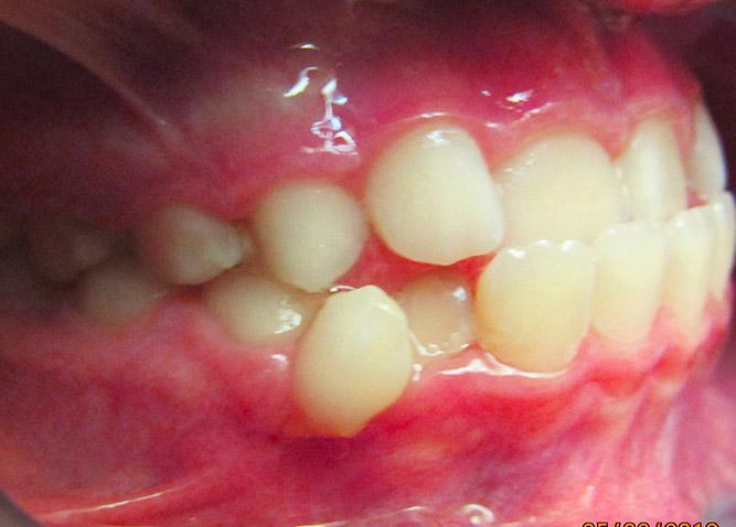 Studio Dentistico Marina Fiocca - Caso ortodonzia intercettiva