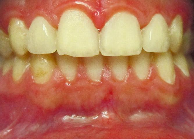 Studio Dentistico Marina Fiocca - Caso ortodonzia trasparente