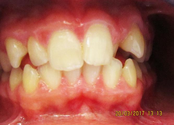biteStudio Dentistico Marina Fiocca - caso ortodonzia