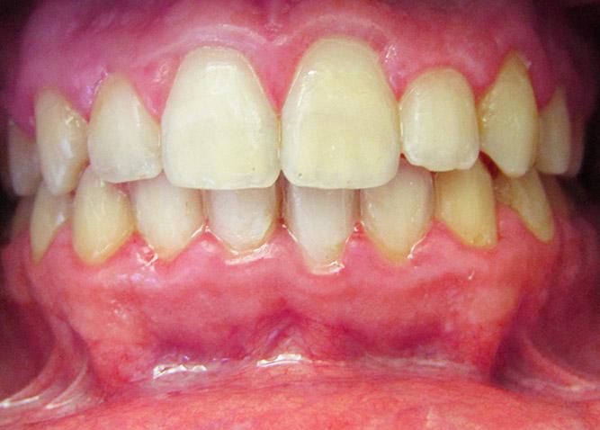 Studio Dentistico Marina Fiocca - Caso ortodonzia