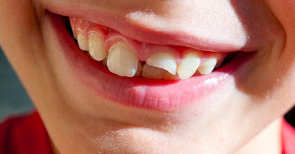 Studio Dentistico Marina Fiocca - Traumi