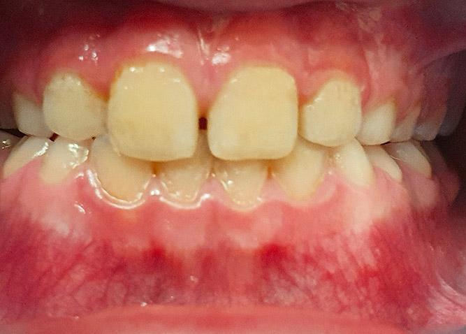 Studio Dentistico Marina Fiocca - ortodonzia-intercettiva-III-classe-scheletrica-dopo
