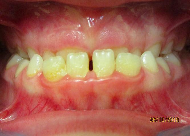 Studio Dentistico Marina Fiocca - ortodonzia-intercettiva-III-classe-scheletrica-prima