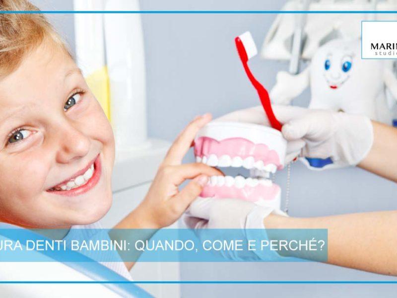 Sigillatura denti bambini | Studio Dentistico Marina Fiocca | Dentista a Cremella